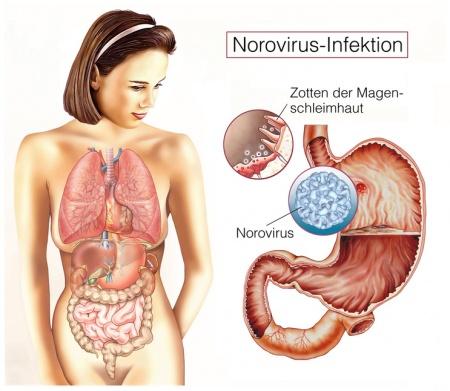leichtverdauliche kost bei norovirus