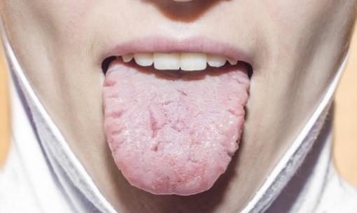 Rissige Zunge Ursachen Behandlung Vorbeugung Gesundpediade