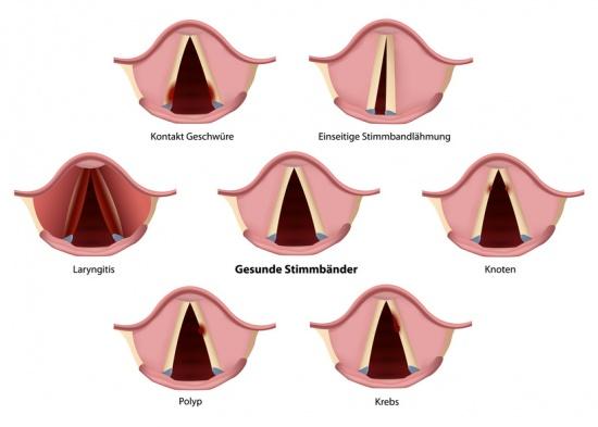Stimmbänder: Funktion, Therapie, Diagnose, Behandlung, Anatomie