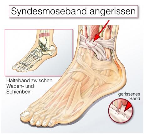 Syndesmoseband Teilruptur – Ursachen, Beschwerden & Therapie ...