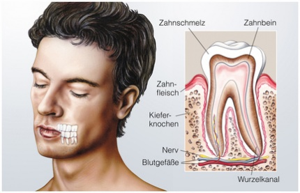 zahnwurzelentzà ndung anzeichen symptome ursachen behandlung